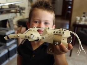 開源 3D 列印的 Robohand 義肢自造入門需知
