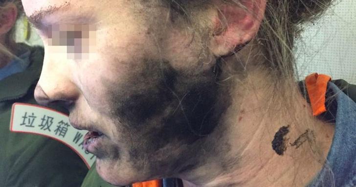 帶有鋰電池的耳機在飛機上爆炸,女乘客一臉焦黑、手部燙傷起水泡