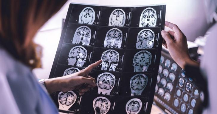 台灣首座AI醫療影像標註資料庫上線,2秒鐘就完成醫師工作!