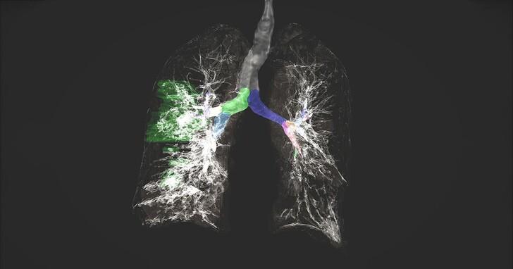 五大洲的 20 間醫院合力訓練神經網路,聯合學習打造出醫療AI